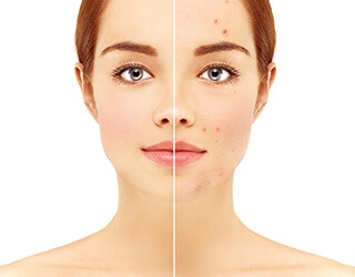 Is there a treatment for acne?