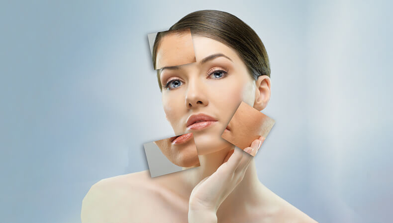 Why not book a skin peel to reduce the stress of the New Year?