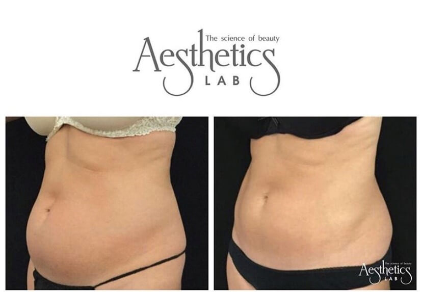 CoolSculpting Hourglass Figure