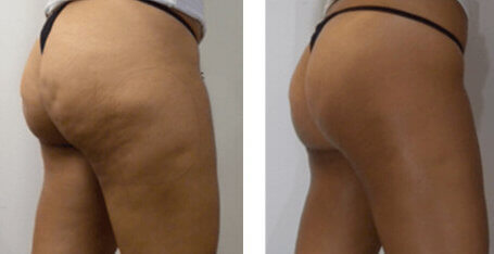 AWT Cellulite Treatment