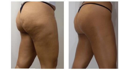 AWT Cellulite Treatment