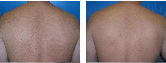 Laser Hair Removal – Soprano Titanium