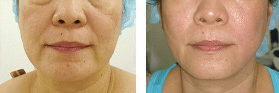 Radiofrequency Skin Tightening