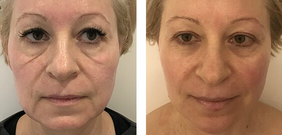 Dermal Fillers in London | Face Fillers Hampstead | Aesthetics Lab