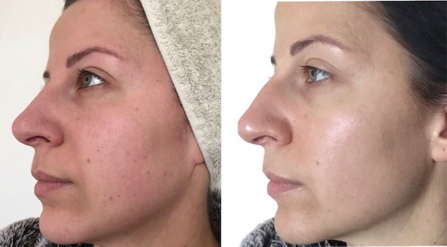 Image result for chemical peel before and after scandinavian