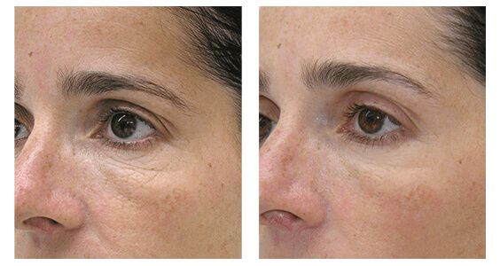 Facial Mesotherapy