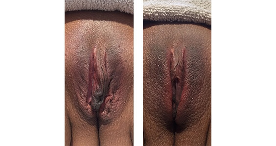Vaginal Rejuvenation Before and After Images