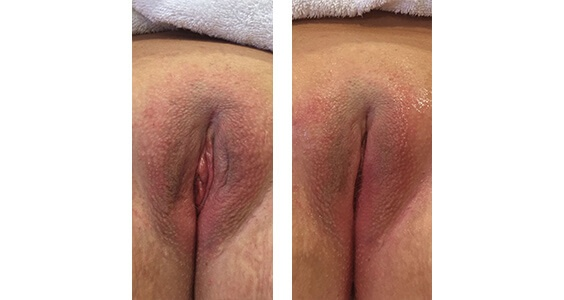Vaginal Rejuvenation Before and After Images